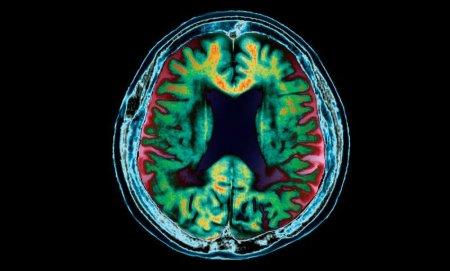 Немочью Альцгеймера можно заразиться при переливании крови