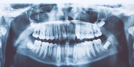 У индийского мальчика найдено 526 лишних зубов. Что это за болезнь?
