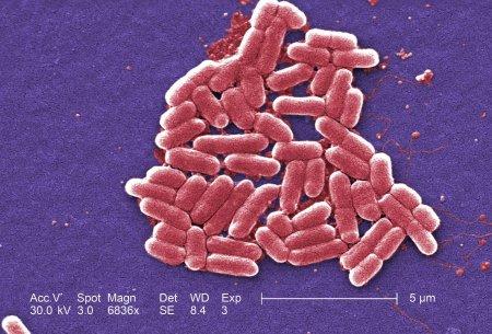 Люди, которые не моют руки после туалета, распространяют устойчивые к антибиотикам бактерии