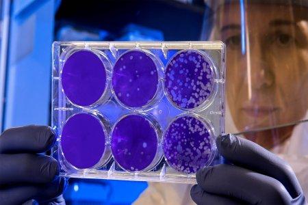 Мнение вирусолога: можно ли второй раз заразиться CoVID-19?
