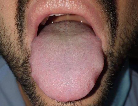 Можно ли диагностировать COVID-19 по языку?